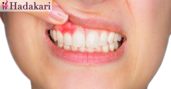 Identify the signs of gum diseases
