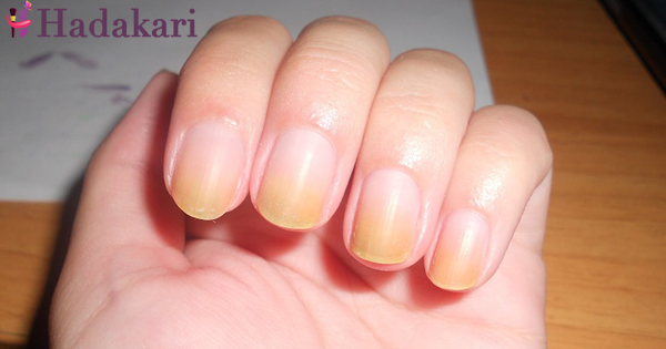 Discoloured nails? Here's the reason and solution