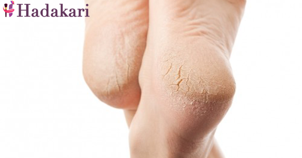 Are you aware of dry cracked feet?