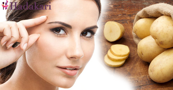 How to get rid go dark circles with potato