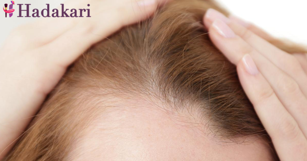 Has your hair started to thinning?