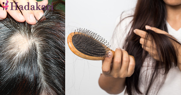 Alopecia Areata ගැන ඔබ දැනගත යුතු සියළු දේ | Everything you need to know about Alopecia Areata